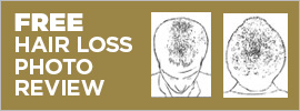 Get a FREE hair loss photo review